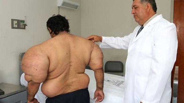 Dalgıcın bu halini gören doktorlar şaşkına döndü!