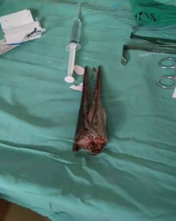 İğne balığı saldırısında bir çocuk yaralandı